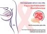 Movimento Rosa: Associação do Câncer celebra mês de outubro com diversas atividades sobre a prevenção do câncer de mama